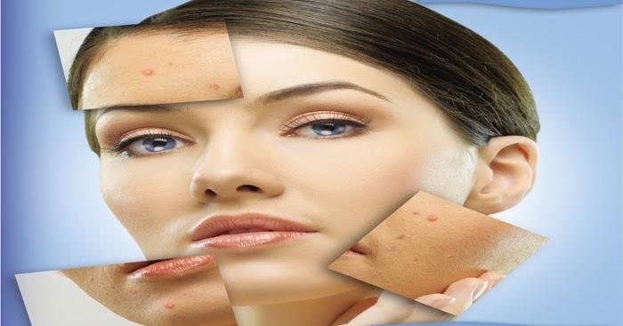 Accutane Isotretinoin Dermatologists Opinion