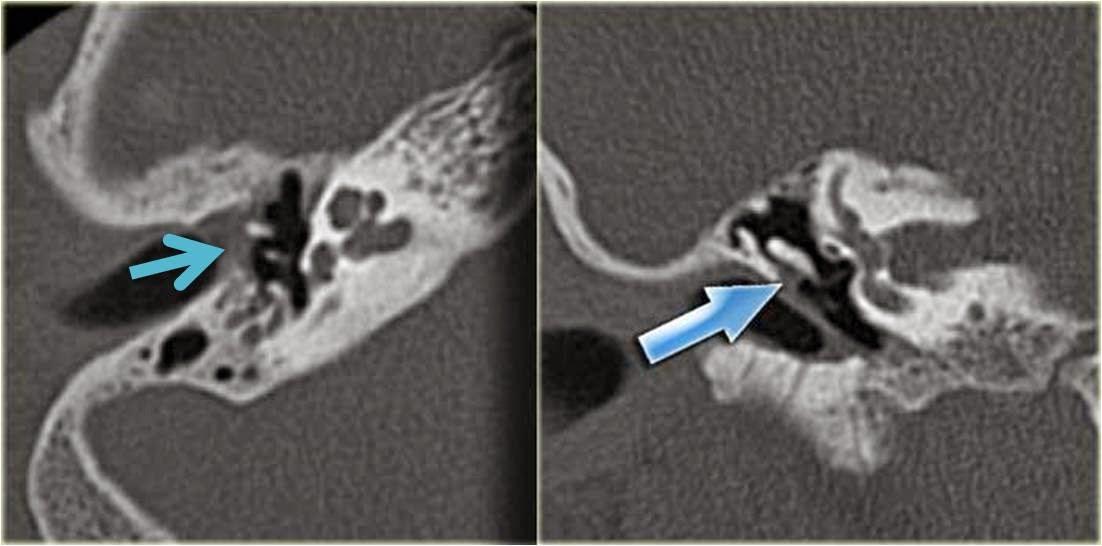 Anatomía y patología de oido   ESPE 202 - 2014
