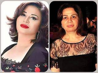 10 Shocking Celebrity Makeup Transformations