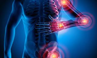 Rimedi naturali per dolori alle articolazioni