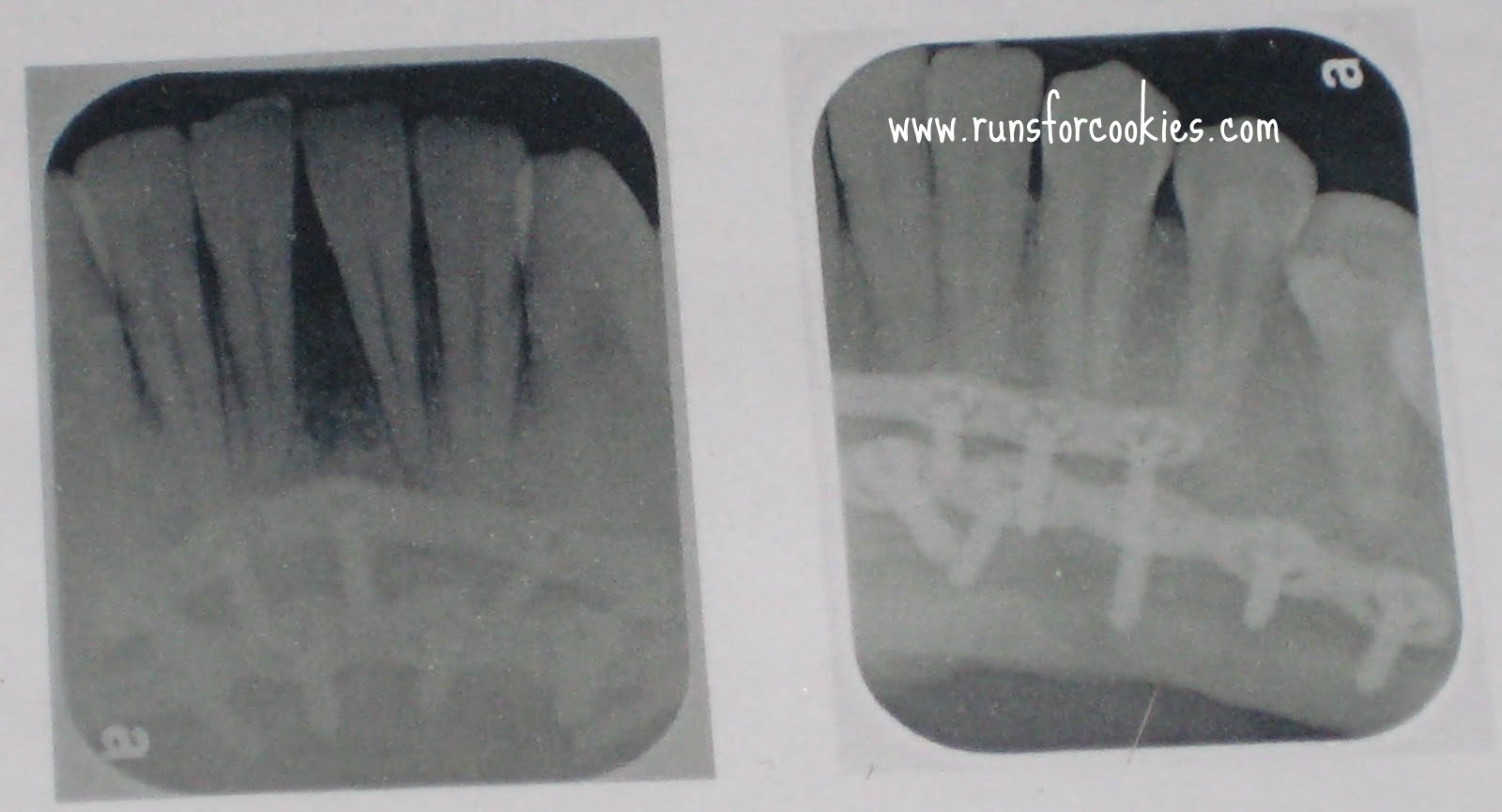 how to see crakles in the x rays