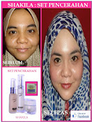 Testimoni Set Pencerahan + Treatment Cream