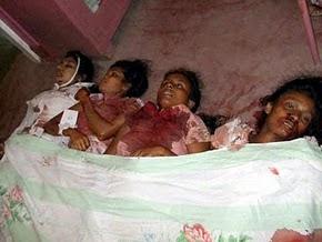 LTTE Bomb in Passenger Bus Kills 15, Injures 38 in Abimanpura, Kebethigollawa.