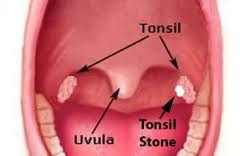 Home Remedy For Severe Tonsil Stones