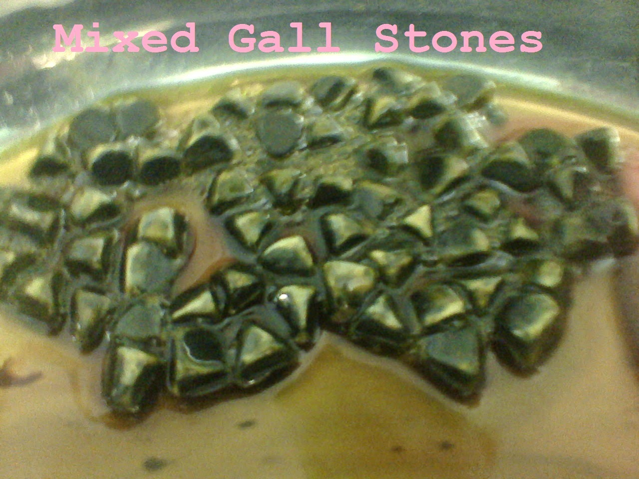 Mixed Gall Stones Pic 2