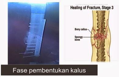 stadium penyembuhan tulang