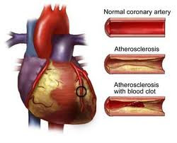 primary coronary intervention for acute myocardial infarction