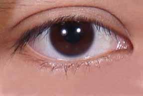 garis halus pada mata