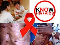 apa pengertian dari hiv