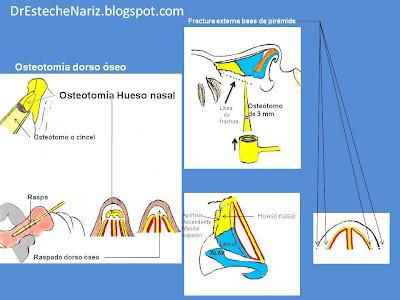 13 Fractura de base de pirámide nasal   Nasenkorrektur geschlossene Technik   16