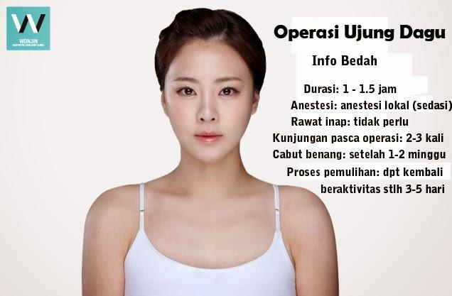 Operasi ujung dagu di klinik operasi plastik Wonjin