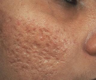 Como Eliminar Cicatrices De Acne