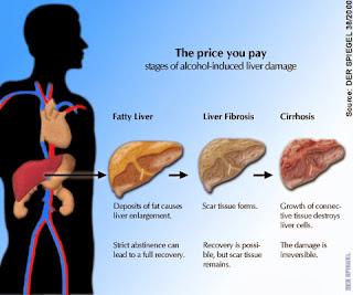 Tips Cara Mengobati Penyakit Liver Secara Alami Dan Tradisional