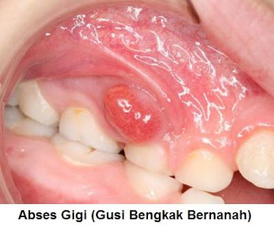 Penyebab, Gejala Dan Pengobatan Abses Gigi, Gusi Bengkak Bernanah