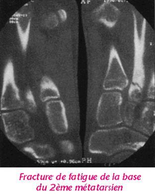 argile fracture orteil
