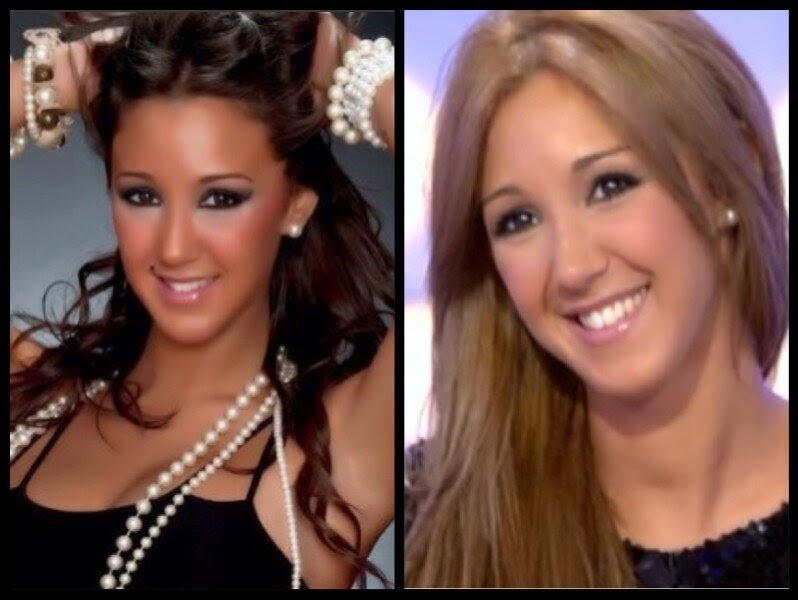 Christina El Moussa Plastic Surgery