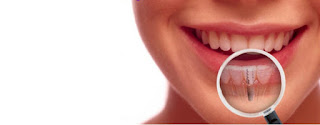 implant-dentist-sydney-bring-back-your-smile-with-dental-implants
