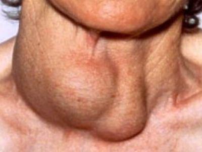 noduli glanda tiroida