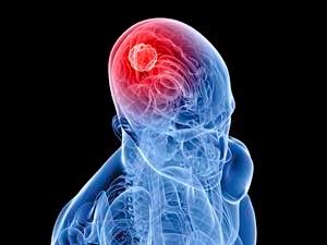 Tips cara mendeteksi kanker otak