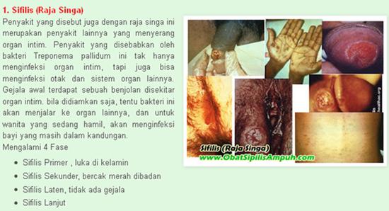 Sopilis, penyakit sipilis, gejala sipilis