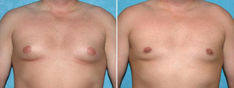 Andrew baildam aumento de senos