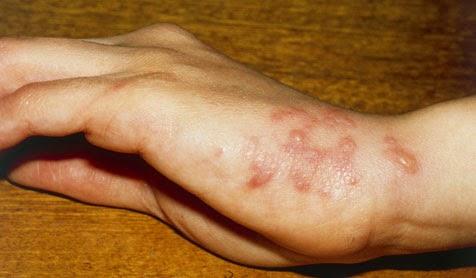 rash on side of feet