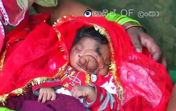 Baby girl born in India with a 'trunk' is being worshipped by locals