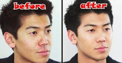 cara menutupi noda jerawat di wajah