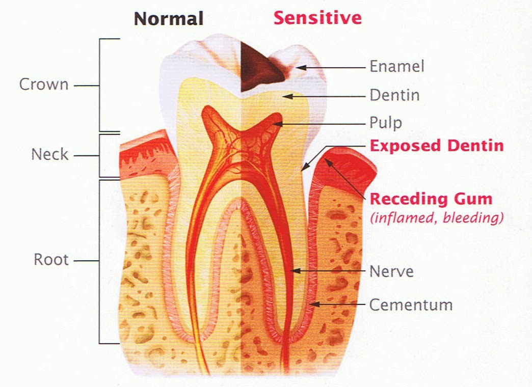 Teeth Getting Sensitive