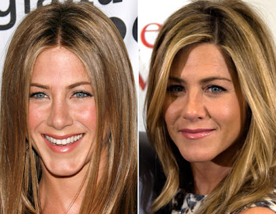 Jennifer Aniston Plastic Surgery Before And After