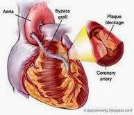 http://pengobatansinusitis01.blogspot.com/2013/11/pengobatan-jantung-bocor-tanpa-operasi.html