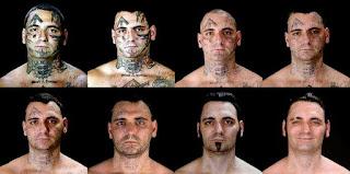 Costi rimozione tatuaggio, prezzi, come eliminare e rimuovere un tatuaggio dalla pelle