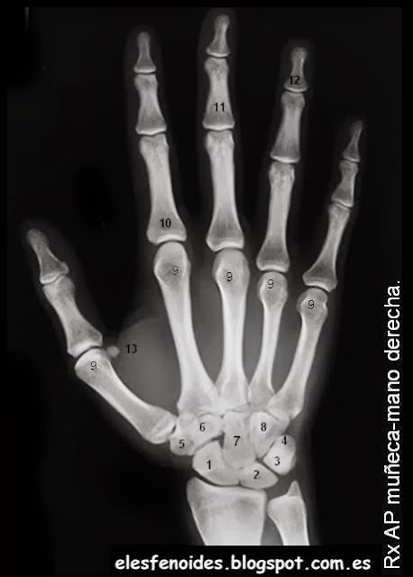 El esfenoides: Huesos de muñeca-mano.