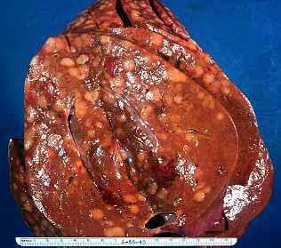 obat kanker hati tradisional stadium 3, obat kanker hati, pengobatan kanker hati