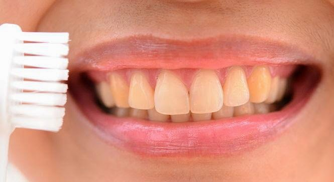 Caries - The main threat to the health of the teeth