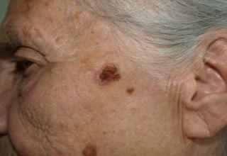 La maladie de Bowen est un carcinome épidermoïde (ou spinocellulaire) épidermique, favorisé par le soleil et l'arsenic.   Elle peut toucher la peau mais aussi les muqueuses.  Elle se présente sous la forme d'une lésion brun rougeâtre arrondie ou arciforme bien limitée dont la surface est un peu surélevée et squameuse.   Son diagnostic est histologique.   Elle évolue lentement mais sûrement vers un véritable carcinome épidermoïde invasif.