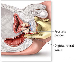 Suplemen Minuman Kesehatan Tumpas Sel Kanker Prostat