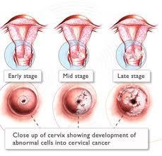 tratamientos-para-el-papiloma-humano-en-mujeres
