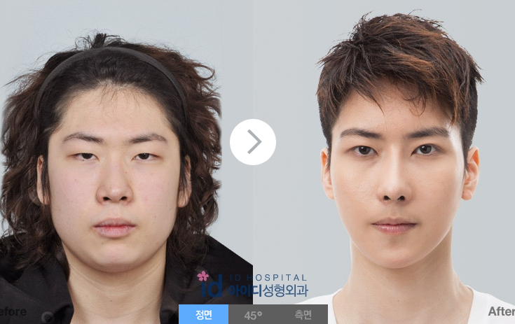 men+plastic+surgery+korea+best+hospital+