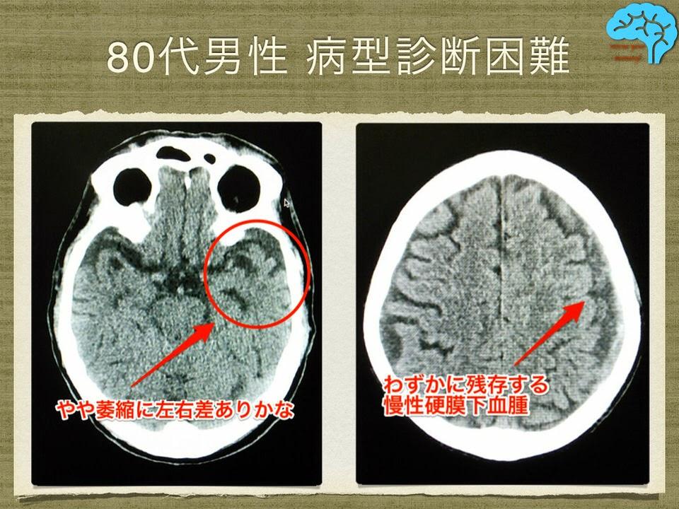 80代男性、頭痛にウインタミンが効果あり。