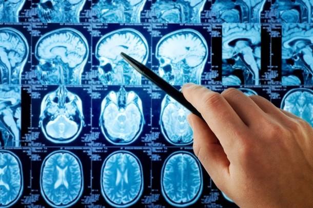 Depressão destrói partes do cérebro