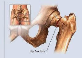 Cara Menyembuhkan Osteoporosis