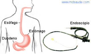 Trato gastrointestinal e endoscopia digestiva