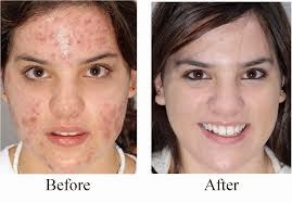 acne scars ,best acne treatment