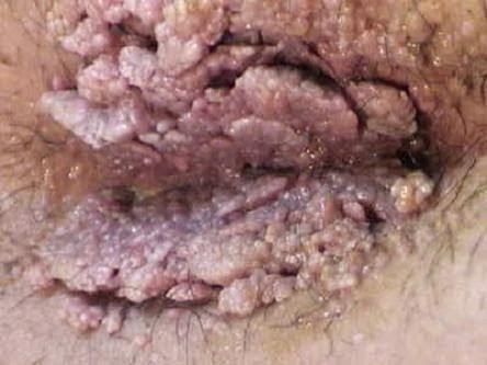 Obat Condylox Natural