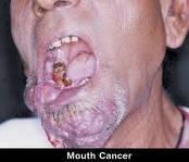 kanker mulut