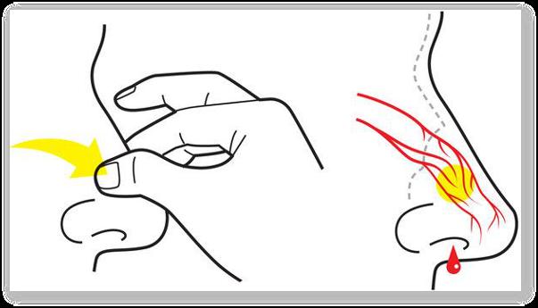Sangerari nazale: metode de prevenire, remedii populare
