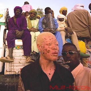 Homem Albino de niger