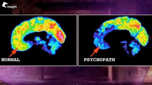 Khác biệt giữa não kẻ thái nhân cách và người bình thường