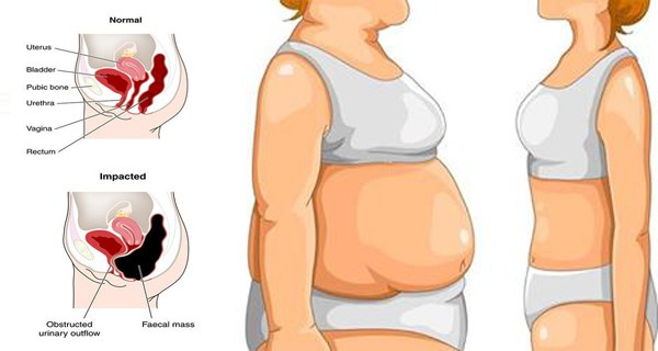 Conceiving after weight loss surgery